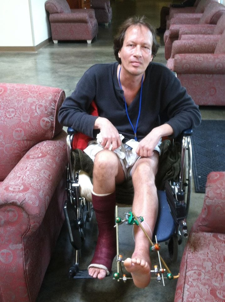 Photo of a respite client of Waterfront Rescue Mission sitting in a wheelchair with a broken leg